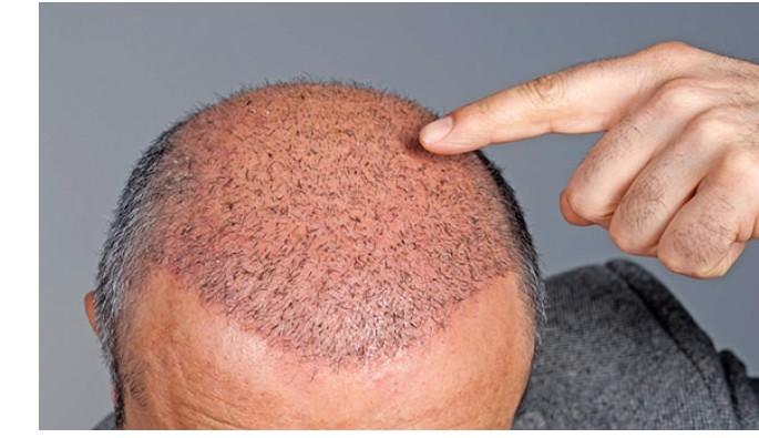 Saç ekimi yaptıranlar saç çizgisine dikkat!