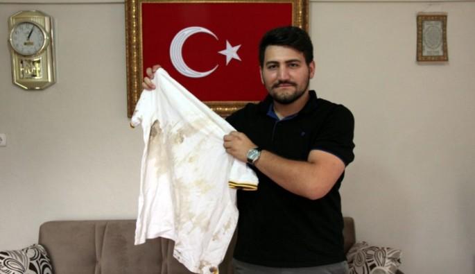 Bursa'nın 15 Temmuz Gazisi vücudunda 20 şarapnel parçasıyla yaşıyor