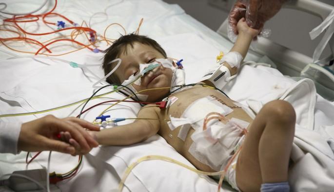 Organları ters yerde bulunan bebeği hayata tutunduran nakil