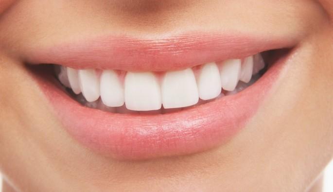 Değişen diş rengine dikkat