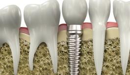 """Dişsizlik sorununa """"implant""""lı çözüm"""