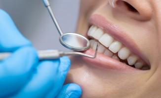 Diş hassasiyeti hakkında bilmeniz gerekenler