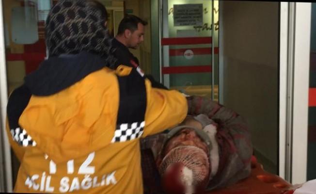 Kafasına parça gelen işçi ağır yaralandı