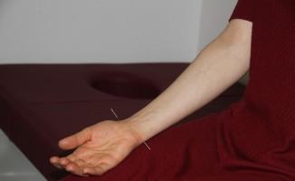Isparta Şehir Hastanesi'nde akupunktur ile ilaçsız tedavi dönemi