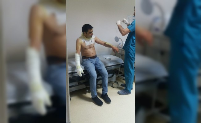 Fırında sıkışan gaz alev aldı: 1 yaralı