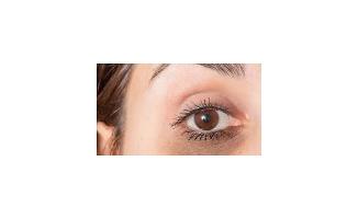 Göz altı morlukları makyajla yok olmaz